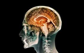 Qadınların beyni kişilərdən daha aktivdir
