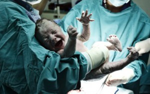 Doğuş zamanı əkizlər öldü, ana komaya düşdü
